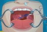 العاب عمليات جراحية للفم