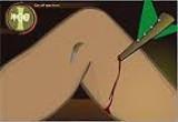 لعبة اجراء عملية جراحية اخراج السهم
