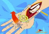 العاب عمليات اليد الجراحية الجديدة