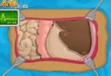 لعبة اجراء عملية جراحية للامعاء
